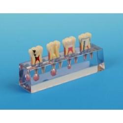 Endodontic Sequence #1 Model